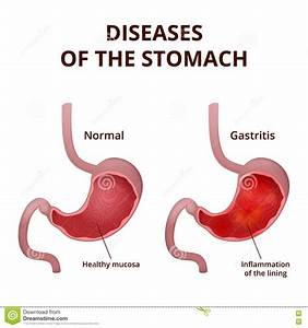 Anatomy Of The Human Stomach Stock Vector