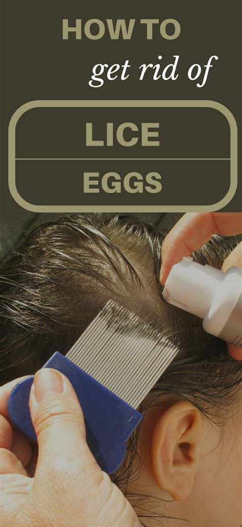 getting rid of a how to get rid of lice eggs topcleaningtips