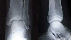 How do broken bones heal? - The Foot Group