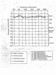 Basic Guide To Understanding An Audiogram