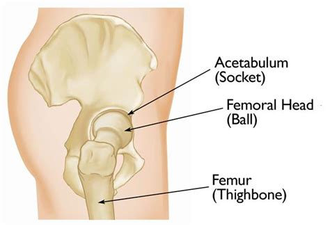 acetabular fractures orthoinfo aaos