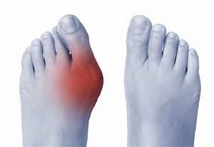 Hobart Podiatrist U0026 39 S Guide To Bunion Treatment  U0026 Causes