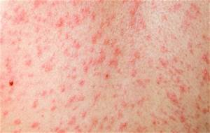 Measles - The Children's e-Hospital  Chickenpox Cough