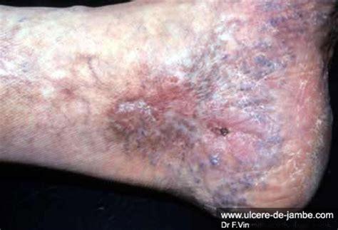 dermite du si鑒e prise en charge diagnostic ulcère de jambe