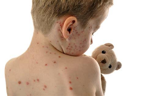 Unterschätzte Kinderkrankheit