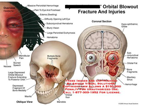 orbital blowout fracture and injuries