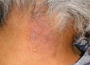 Lichen Simplex Chronicus - Causes, Symptoms, Treatment ...