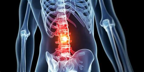 world  trial  early treatment  spinal cord injury