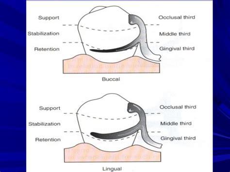 Removable partial dentures(direct retiner) (1)