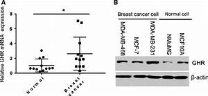 Growth Hormone Receptor Promotes Breast Cancer Progression Via The Braf  Mek  Erk Signaling