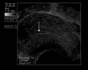 Sarcina fara embrion cauze