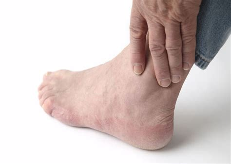 signs  symptoms  gout