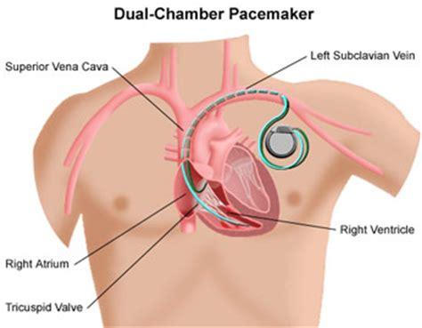 pacemakers and defibrillators uchicago medicine