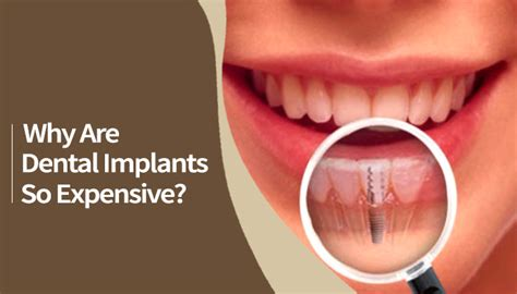 dental implants  expensive north andover dentist