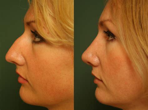 exercises    nose  shape aksharing