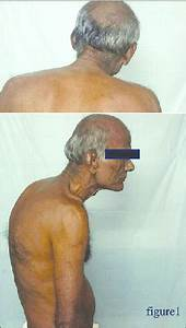 Patient With Ankylosing Spondylitis Having Thoracic  Fixed