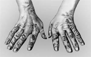 Реактивный артрит лечение лекарствами