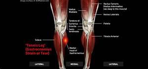 Tennis Leg  Gastrocnemius Strain Or Tear   U2013 Thermoskin