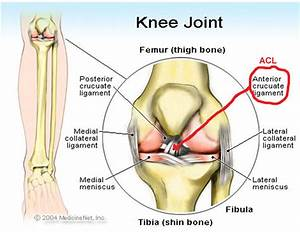 Diagram Of Torn Acl : twisted knee injury acl reconstruction surgery ~ A.2002-acura-tl-radio.info Haus und Dekorationen