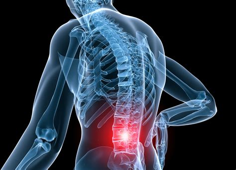 Low Back Pain Help In 24 Hours  Uconn Today. Back Specialist Seattle Halfway House Florida. Life Insurance Rates For Seniors. No Interest Credit Cards 24 Months. Building Plantation Shutters Duns 4 Number. Printed Adhesive Labels Mini Storage Metairie. Masters In Business Administration. Fha Approved Condos In Florida. Accounting Degrees Online Blueshield Ca Login