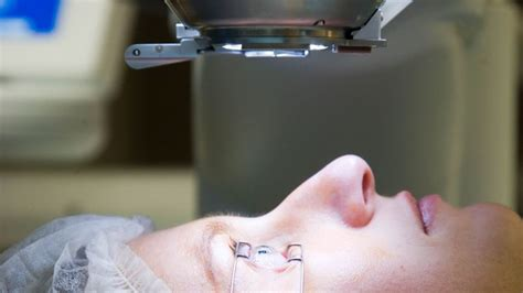 le rembourse chirurgie myopie laser chirurgical pret mutue