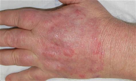 tinea hidden   vemurafenib induced phototoxic reaction