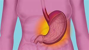 What Does Hydrochloric Acid Do in the Stomach? | Reference.com  Stomach