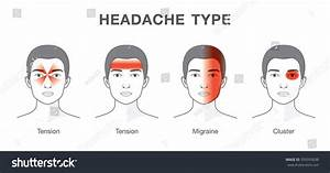 Illustration About Headaches 4 Type On Stock Vector