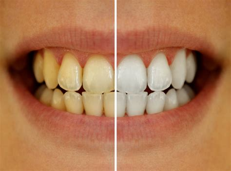 tooth discoloration types dental implants