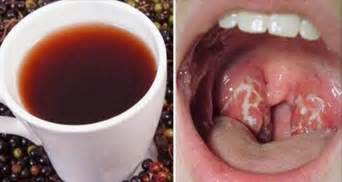 Is Pharyngitis Contagious? How Do You Get It? What's The Cure?