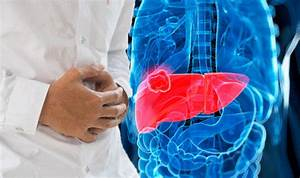 Bowel Cancer  Symptoms And Signs That It Has Spread To The