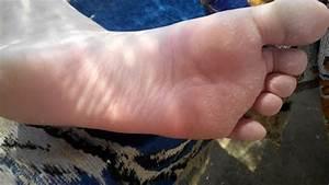 Чешутся ступни ног что делать грибок