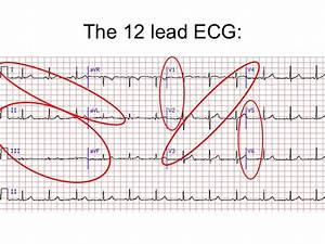 12 Lead Ecg Interpretation Lesson And Practice Quiz 311