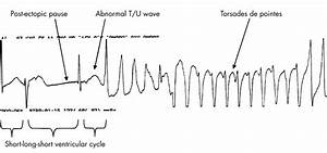 Drug induced QT prolongation and torsades de pointes | Heart