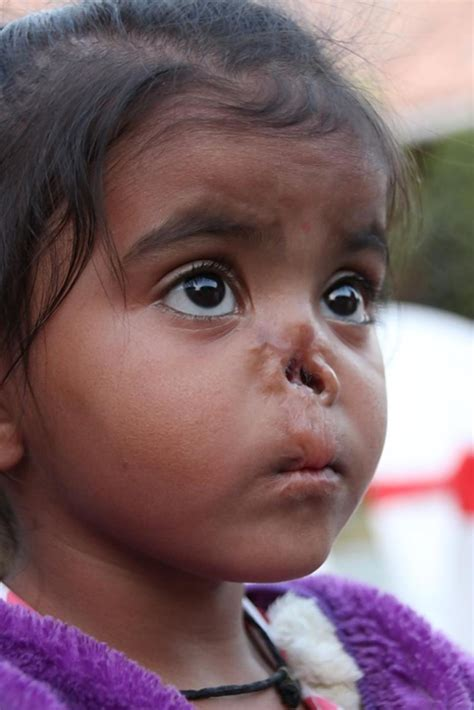 ohio teacher adopts rejected indian girl   nose