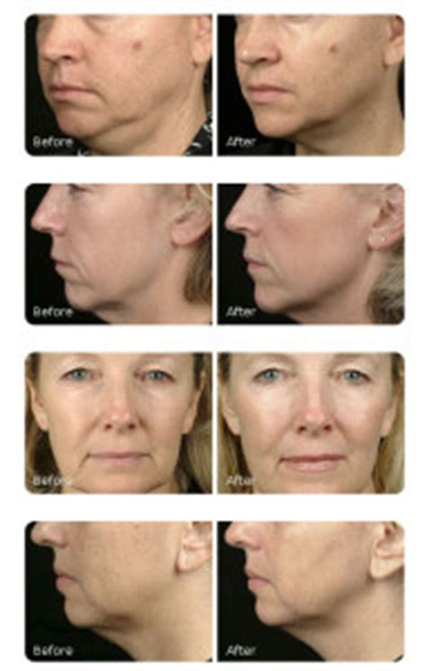 ultherapy  thermage  skin tightening pros  cons