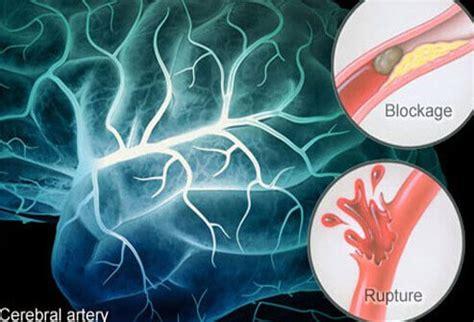 stroke related dementia cognitive vascular dementia