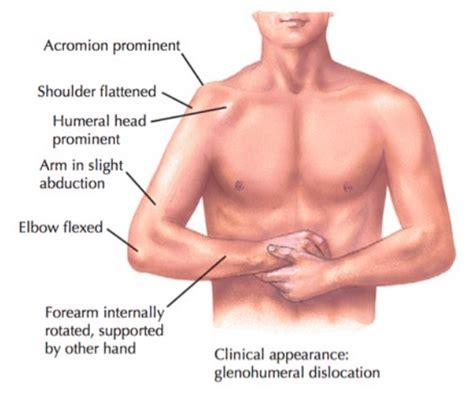 Shoulder Dislocation – Core EM