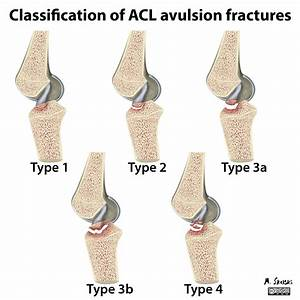 Acl Avulsion With Fibula Fractures