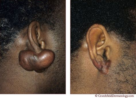 keloids what are keloids scarring hypertrophic scar