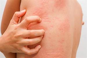 What are the Causes and Risk Factors of Candida Infection?