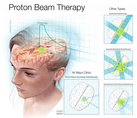Proton Radiotherapy by What Does Proton Beam Therapy Do For Cancer Patients That