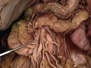 Pancreas: Pancreas Uncinate Process