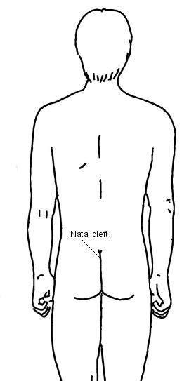 pilonidal cyst pilonidal sinus what is a pilonidal sinus symptoms