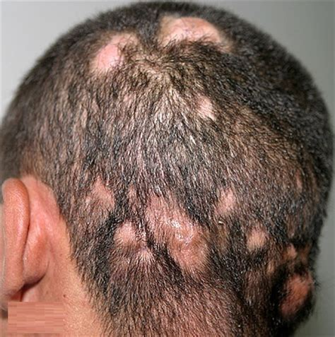 hair loss dermatologist itchy scalp dry hair loss causes treatment remedy diseases pictures