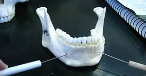 Boned: Human Skull - mental foramen (of mandible)