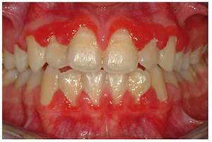 Clinical View Of A Diffuse Gingival Involvement In A