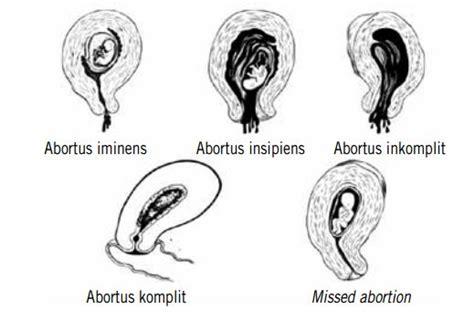 4 2 abortus edukia