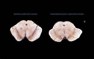Parkinson Disease Pathophysiology Animation