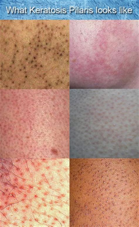 Rough Bumps Skin   Dorothee Padraig South West Skin Health